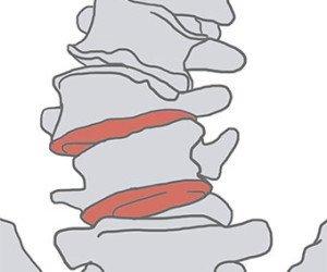 degenerative-scoliosis2