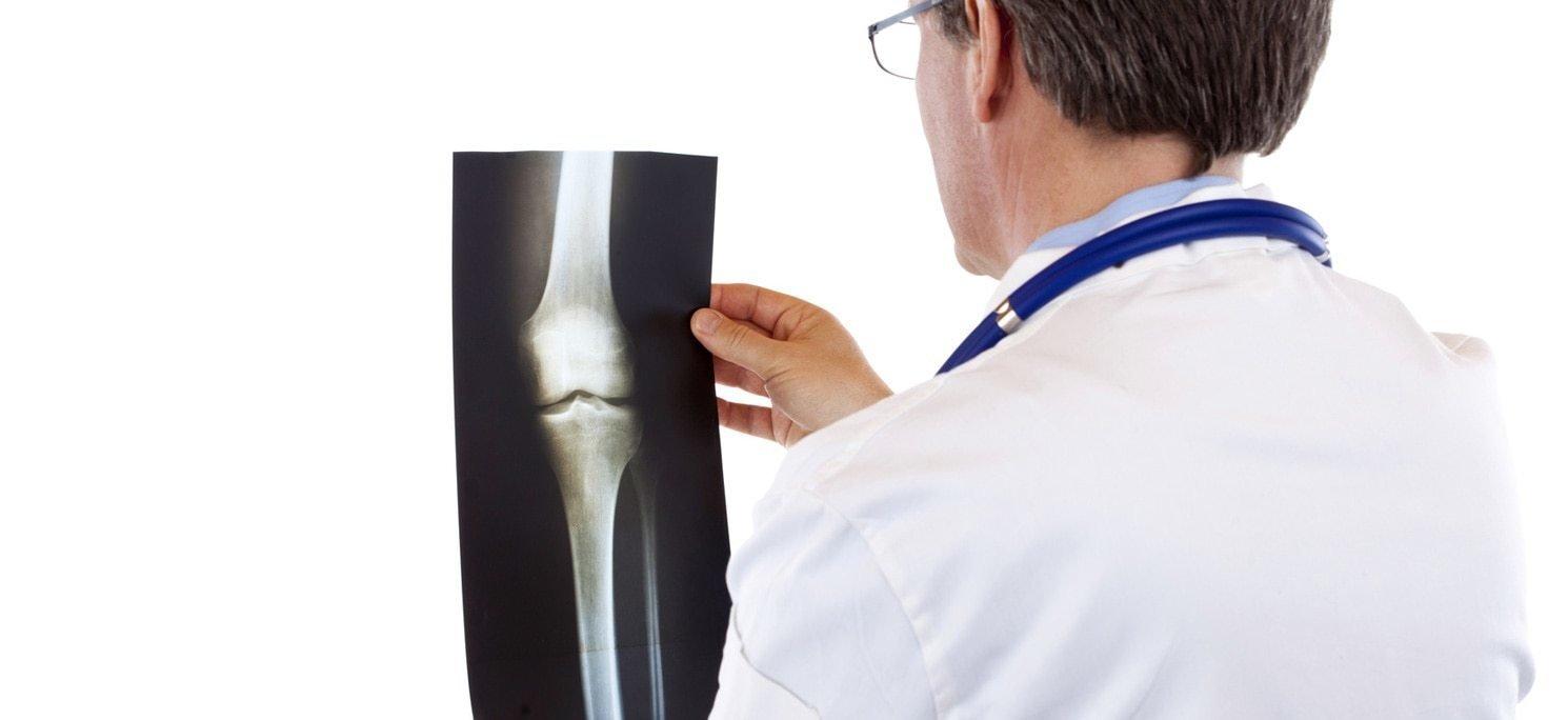 Vista da dietro di un medico che guarda un'immagine ai raggi x